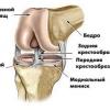 Артроз колінного суглоба: лікування