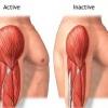 Атрофія м`язів