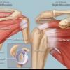 Біль у плечі як допомогти при плечелопаточном періартриті, або вилікувати біль у плечі