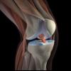 Болі в колінах. Лікування коліна народними засобами
