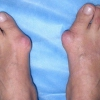 Болить кісточка на нозі: біля великого пальця, мізинця