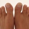 Бурсит великого пальця стопи - ознаки і способи лікування