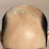 Часті питання про випадання волосся