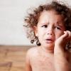 Короста у дітей: симптоми і лікування, фото