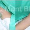 Делікатно: 9 способів лікування пітливості