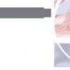 Дисбактеріоз в гінекології: дисбактеріоз піхви (вагіноз), вагініт