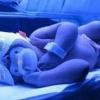 Для лікування желтушки новонароджених будуть використовувати светоодеяло