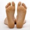 Гіпергідроз стоп ніг