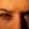 Глаукома: причини, симптоми, лікування, профілактика і фото