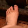 Грибок нігтів на ногах - лікування і профілактика