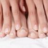 Грибок нігтів на руках - лікування