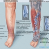 Хірургія лікування варикозного розширення вен нижніх кінцівок