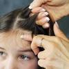 Лікування педикульозу у дітей. Як легко вивести воші у дитини?