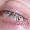 Як швидко вилікувати ячмінь на оці?
