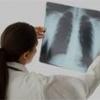 Як лікувати пневмонію у дитини