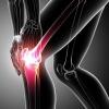 Як лікувати розрив зв`язок колінного суглоба