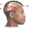 Як лікувати струс головного мозку народними засобами?