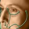 Як лікувати запалення трійчастого нерва