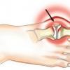 Як вилікувати артрит