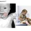 Як вилікувати дерматит у дитини?