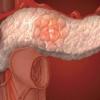 Як вилікувати хронічний панкреатит. Рецепти від хронічного панкреатиту