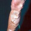 Як вилікувати порізи