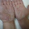 Як вилікувати лущення шкіри?