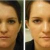 Яка глина підходить для жирної шкіри обличчя