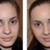 Які причини сухої шкіри