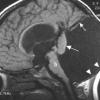 Кіста головного мозку