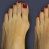 Кісточки та шишки на ногах