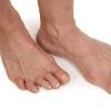 Лікування артриту суглобів ніг