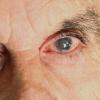 Лікування глаукоми у літніх людей