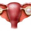 Лікування кісти жовтого тіла правого і лівого яєчника: симптоми, причини