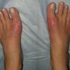 Лікування кісточок на ногах народними засобами