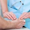 Лікування кісточки на ногах в домашніх умовах народними засобами