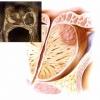 Лікування раку передміхурової залози