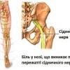 Лікування сідничного нерва народними засобами