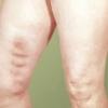 Лікування тромбофлебіту народними засобами