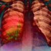 Лікуємо пневмонію