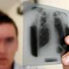 Лікуємо туберкульоз