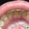 Лікуємо зубний камінь