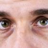 Мішки під очима: причини і лікування