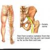 Міжреберна невралгія симптоми і лікування