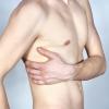Міжреберна невралгія зліва: симптоми
