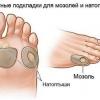 Мозолі на руках: лікування й видалення