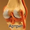 Народне лікування артриту