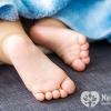 Дитяча плоскостопість: що робити?