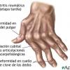 Поліартрит і його симптоми
