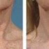 Правила використання ефірних масел від зморшок на обличчі